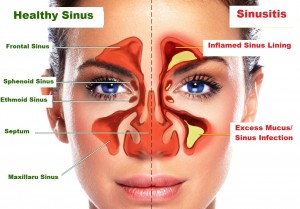 sinusitis signs and symptoms
